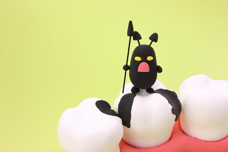 痛くなってからでは遅い、むし歯の早期治療の大切さ