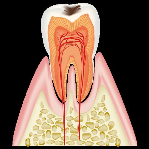 むし歯|C1