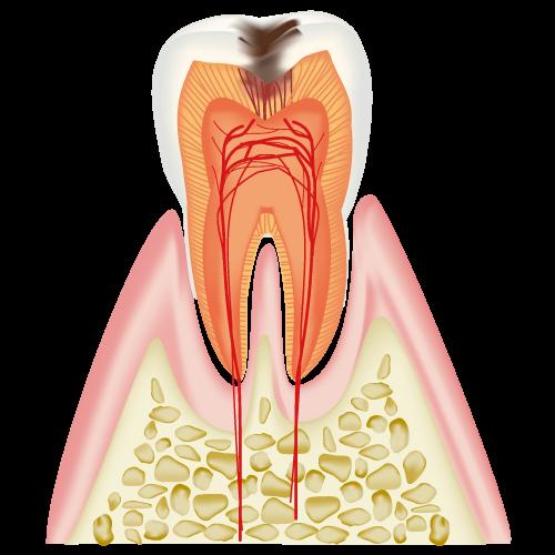 むし歯|C2